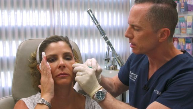 Botox for Wrinkles Procedure