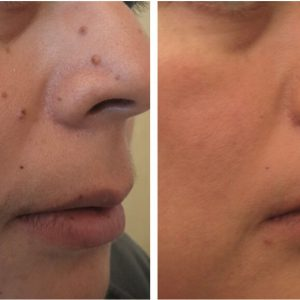 Laser Removal Of Age Spots And Freckles Treatment Clinic