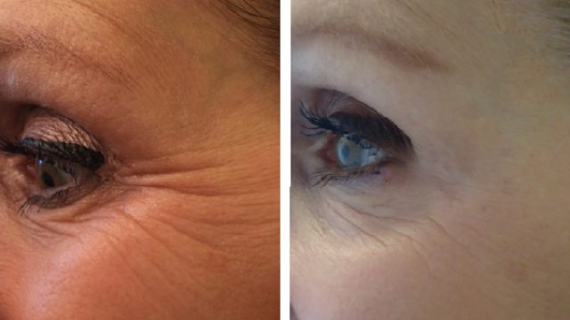 Botox Cosmetic for Wrinkles